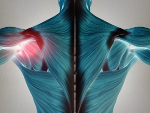 Diagram of torso with shoulder joint pain