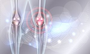 Diagram of joint pain in knee